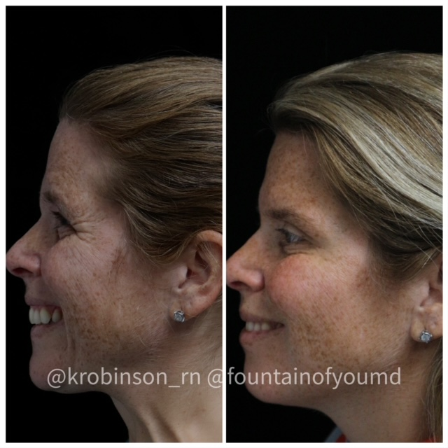 Women had a Botox Treatment on her face
